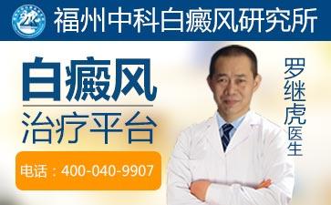 白癜风早期脸部症状