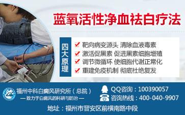 白癜风疾病有哪些特点