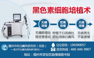 中医分析肢端型白癜风