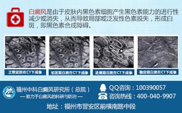 不同类型的白癜风症状表现有什么不同