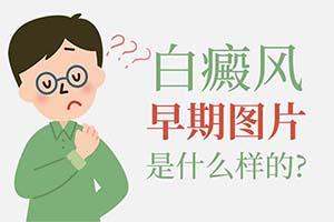 白癜风初期是怎样的?漳州看白癜风医院